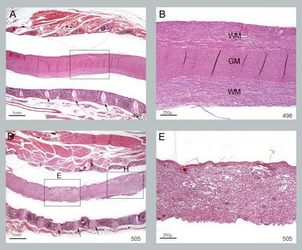 MOG-histology
