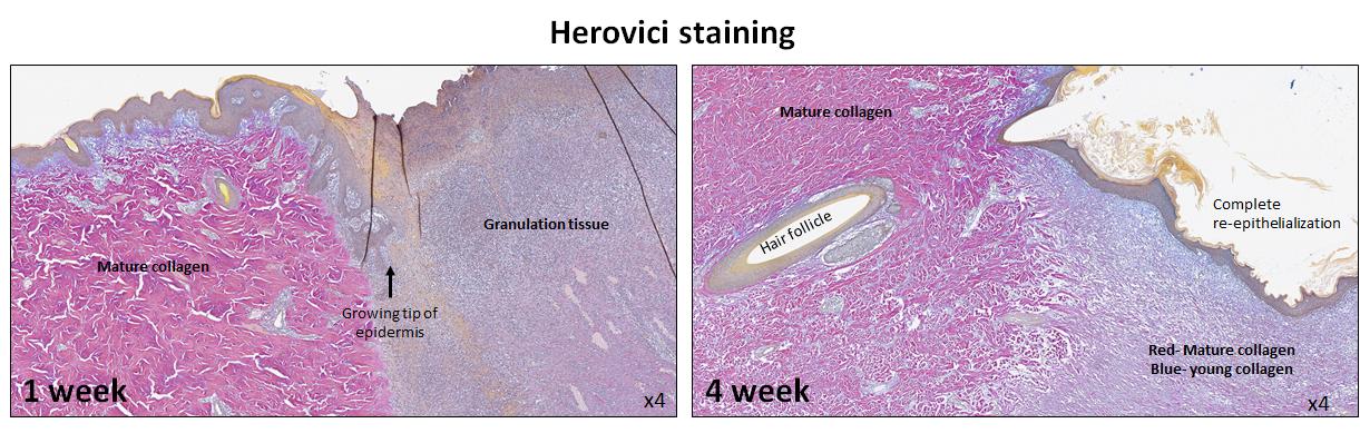 Herovici-staining-MDBiosciences