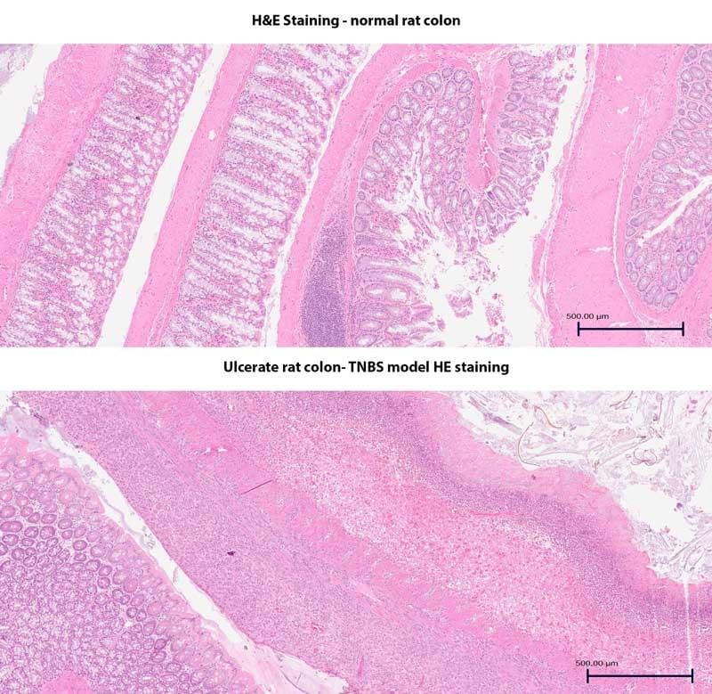 Histology-colon-TNBS-MDBisociences