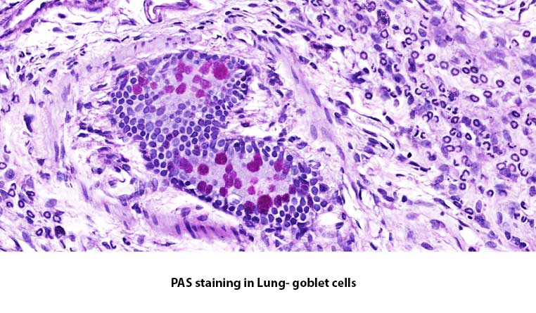 PAS-lung-histology-MDBiosciences