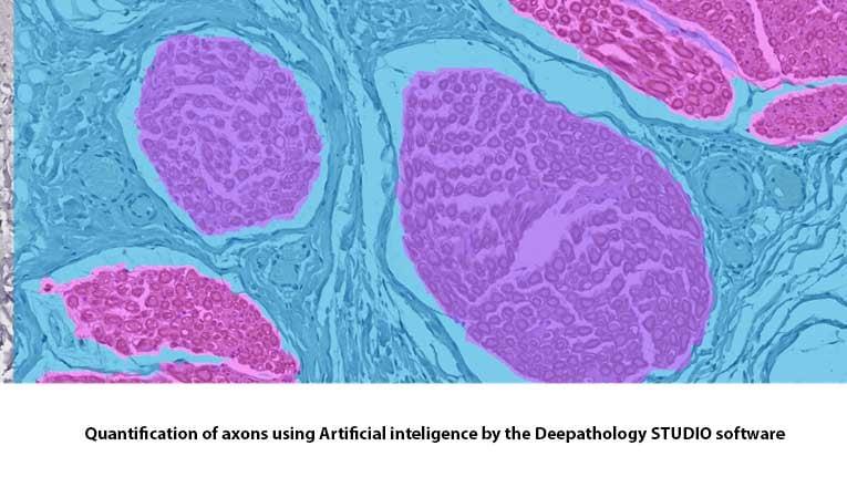 quantification-axons-histology-MDBiosciences
