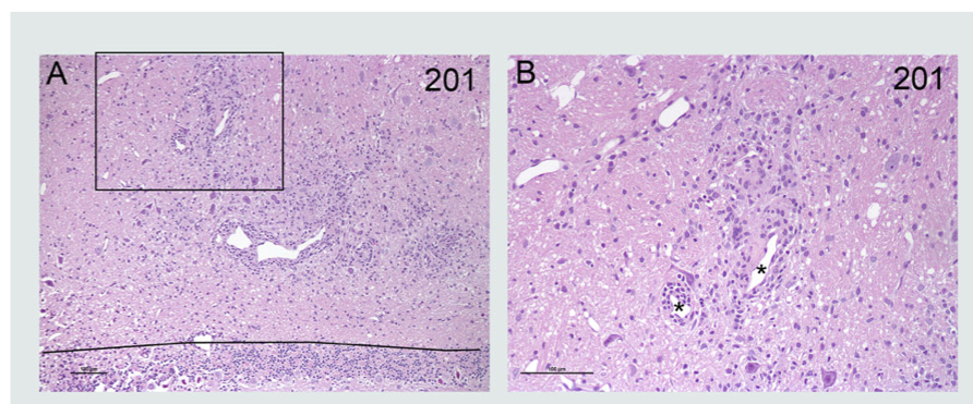 MBP-Induced-EAE-H&E-Staining-Brain-Tissue-Spinal-Cord