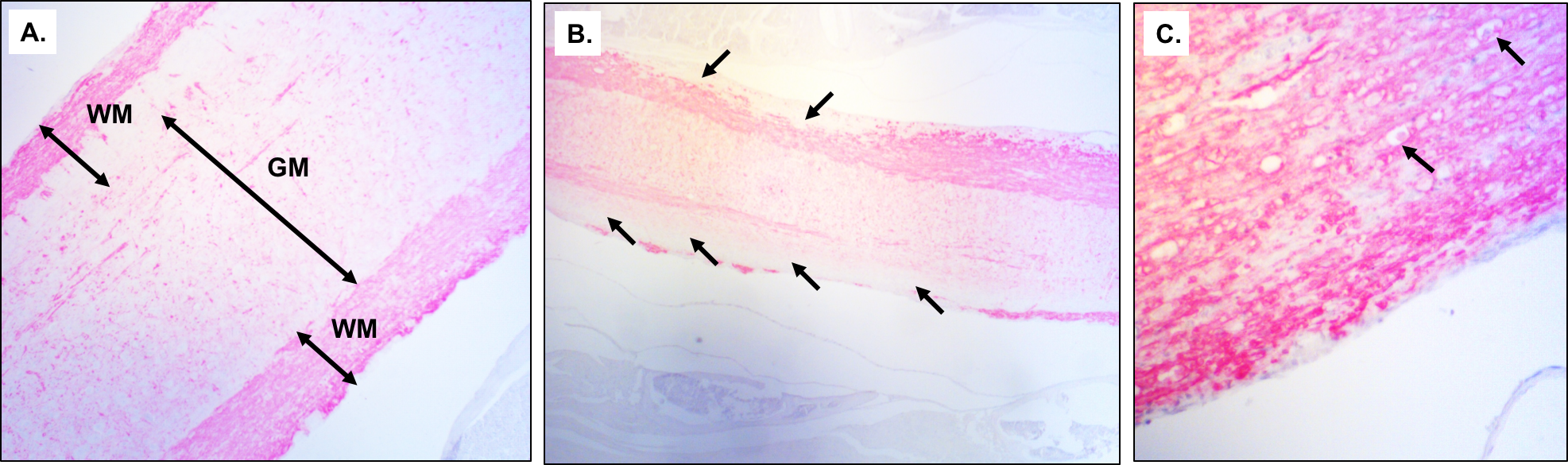IHC-Staining-Longitudinal-Sections-of-Spinal-Cord-Myelin-Basic-Protein_MOG-Induced-EAE-Model-Mice