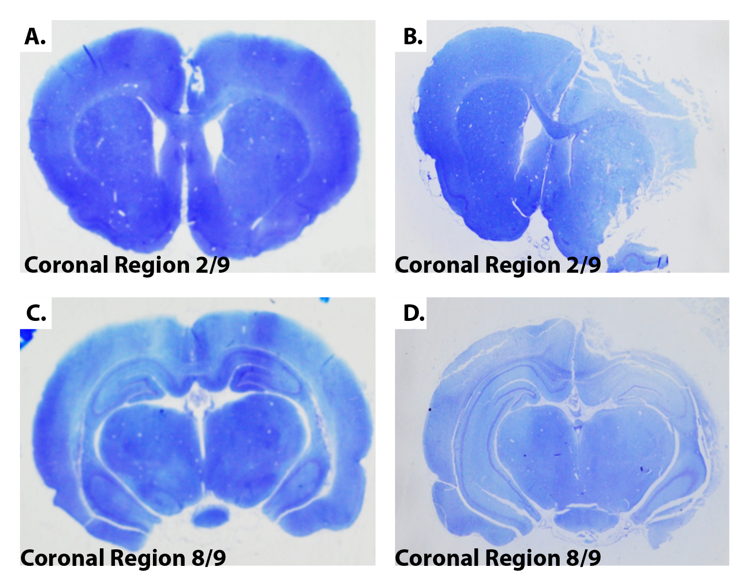 Thionine-Staining-Of-Coronal-Brain-Sections-MCAo-Model-Ischemic-Stroke