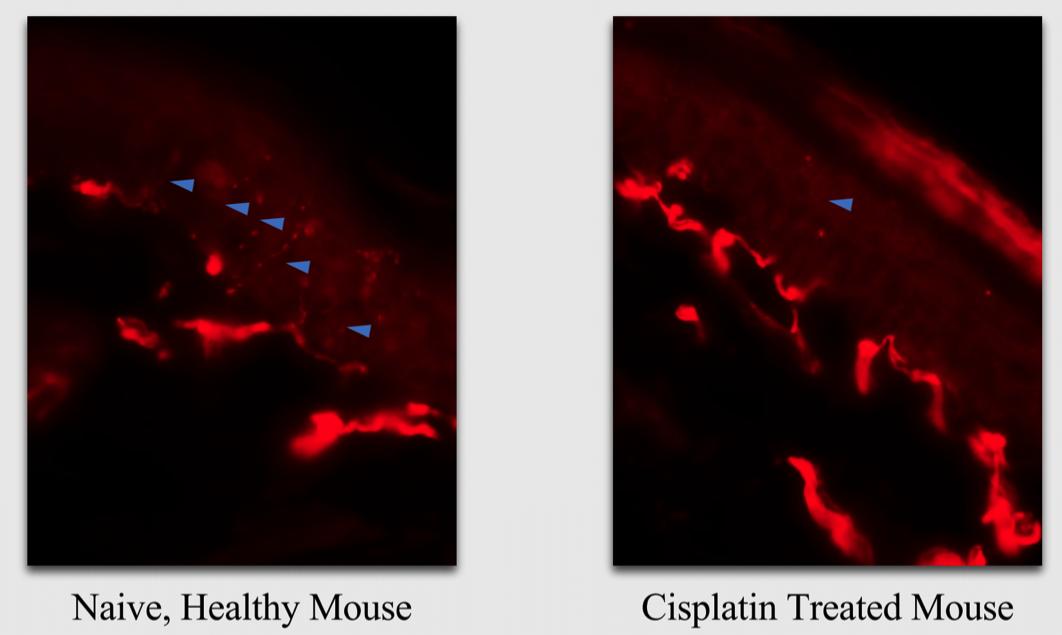 IENF Cisplatin-CIPN-mdbiosciences