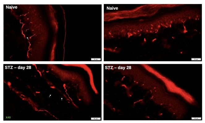 IENF STZ diabetic neuropathy
