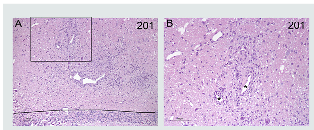 MBP-Induced-EAE-H&E-Staining-Brain-Tissue-Spinal-Cord.png