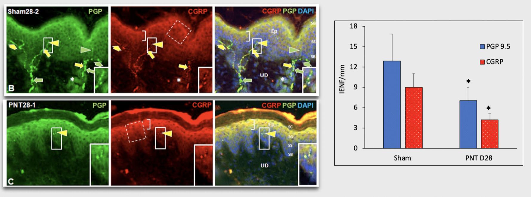 PNT sciatic nerve injury pig skin biomarker