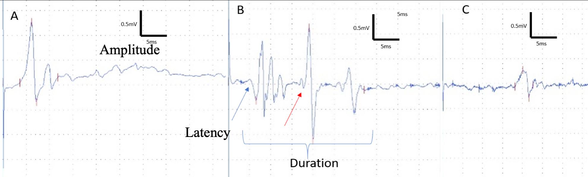 electropysiology recording