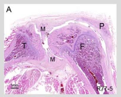 MIA_histology