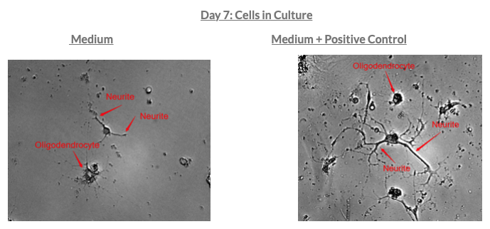 neurite outgrowth assay-mdbiosciences