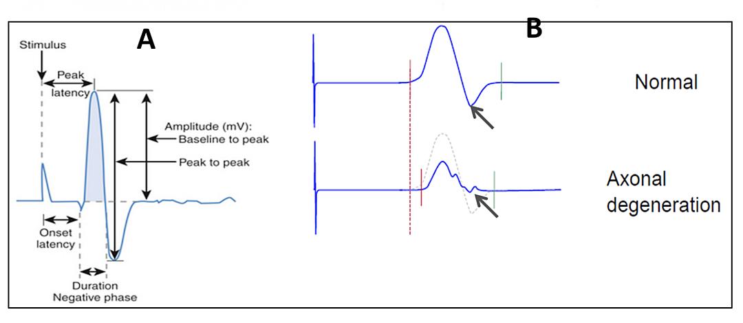 electrophysiology-capabilities-CRO